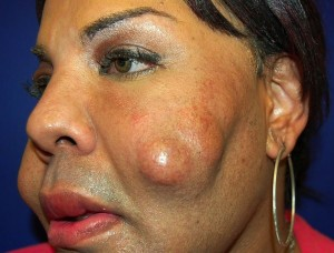 Cosmetic Surgery Disaster - Woman Dubbed 'Cement Face' Given New Lease Of Life