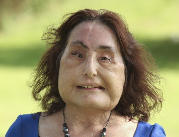 america�s first face transplant patient finally speaks out