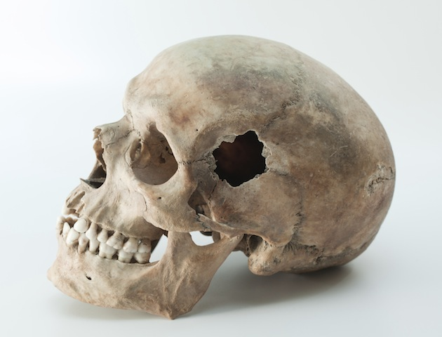 Trepanning: human skull with hole in