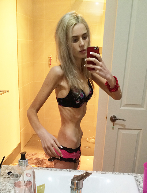 Most Anorexic Girl