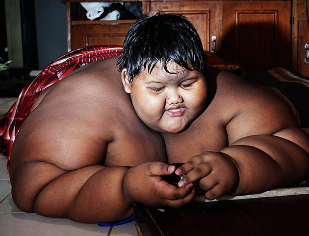 World's fattest boy: Morbidly obese 10-year-old has to crash diet to save his life