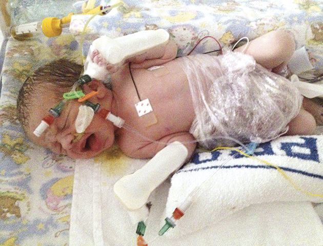 Mum speaks out about baby Gastroschisis with born inside out