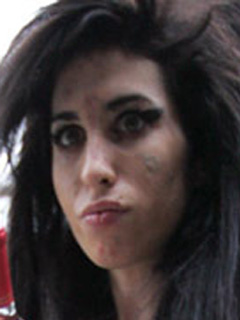 Amy Winehouse scarred face