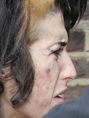 Amy Winehouse scabby face