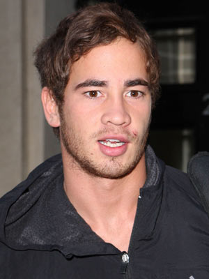 Danny Cipriani shows off his battle wounds