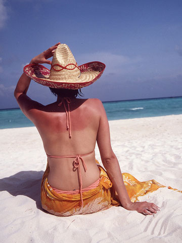woman | sunburnt | back | beach | sea | wearing hat