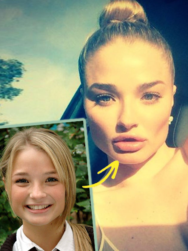 See Hollyoaks Emma Rigby S Hollywood Transformation