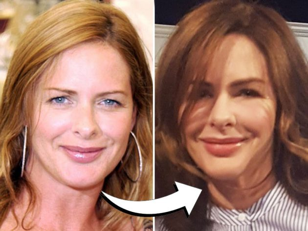 trinny woodalls changing face ive been having botox for years