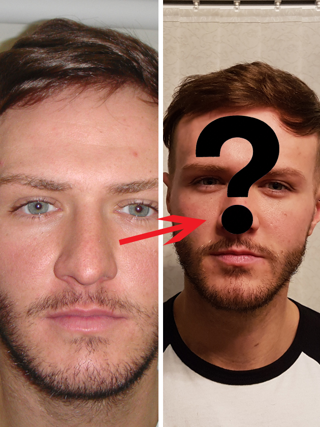 Pictures Kyle Christie Shows Off His Nose Job But You Won