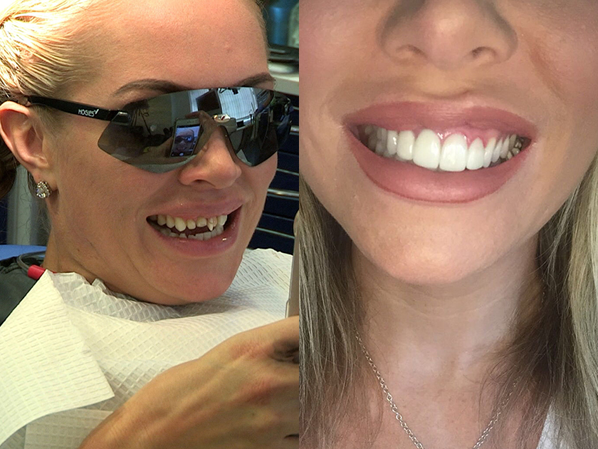 Replacing a broken or missing tooth - Celebrity ...