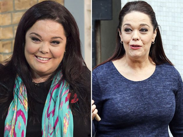 Has Dramatic Weight Loss Dramatically Aged These Stars