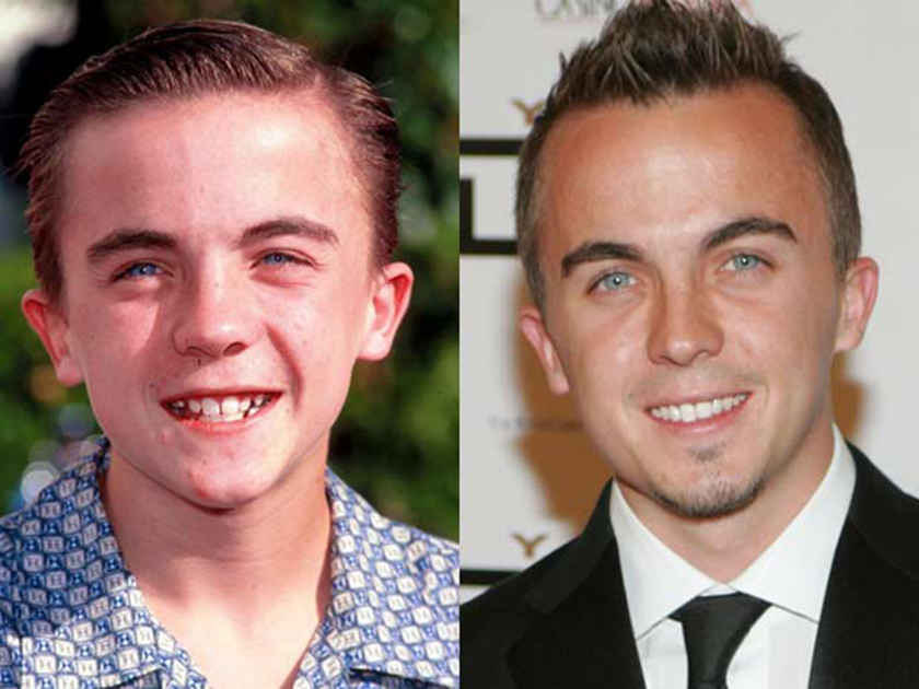 Whatever happened to… Malcolm in the Middle's Frankie ...