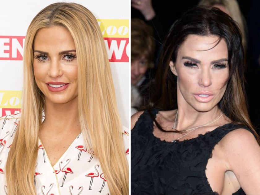 Katie Price shock photos: What have you done to your face?