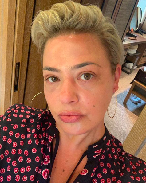 Lisa Armstrong stuns in make-up free selfie: 'You look like a different person to a year ago'