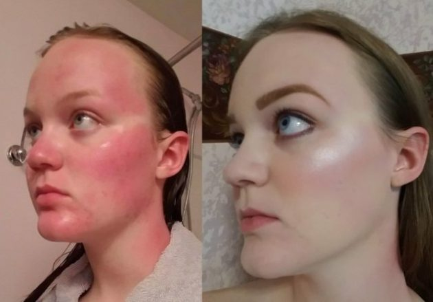 Before And After Make Up Photos That Have To Be Seen To Be Believed