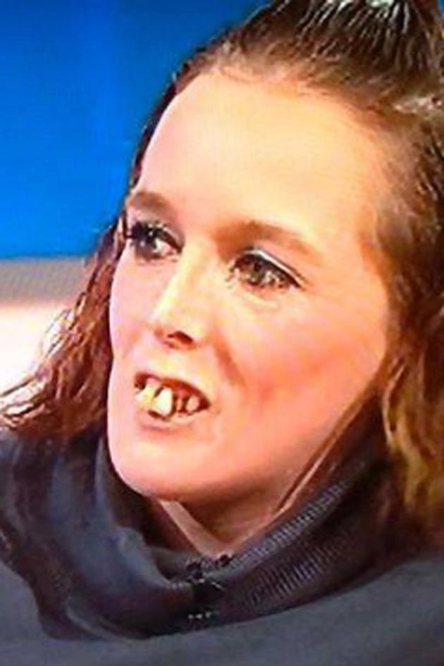 Bullied Jeremy Kyle Guest Gemma Has Dramatic Teeth