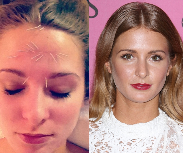 Acupuncture Face Wrinkles - Acupuncture Acupressure Points
