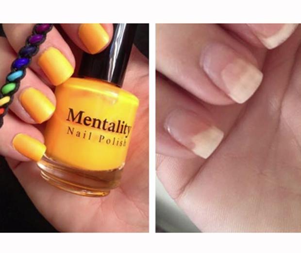 Mentality Nail Varnish Has Been Ruining Women S Nails