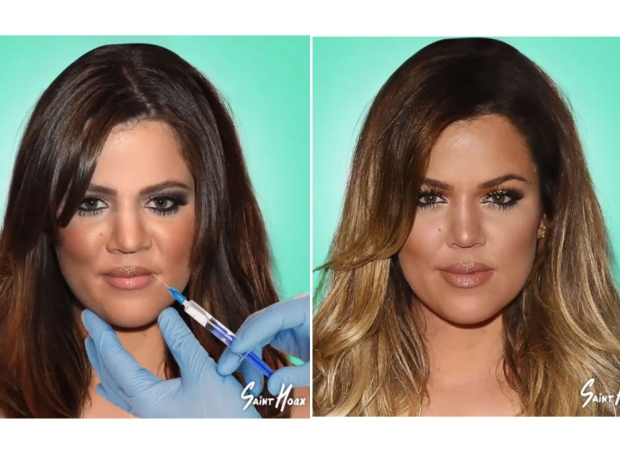 khloe kardashian changing face