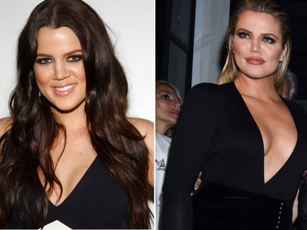 Khloe Kardashians changing face