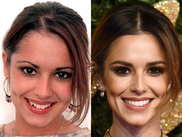 Teeth Whitening: Celebrity Dentists' Tips for a Brighter Smile