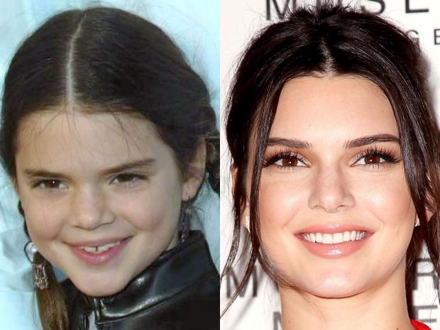 Celebrity Teeth