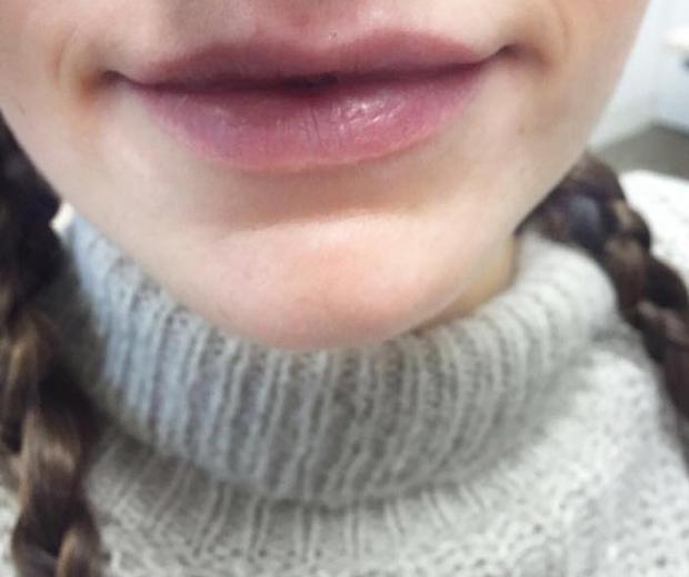 Instant Effects' Lip Plumper, £24.99