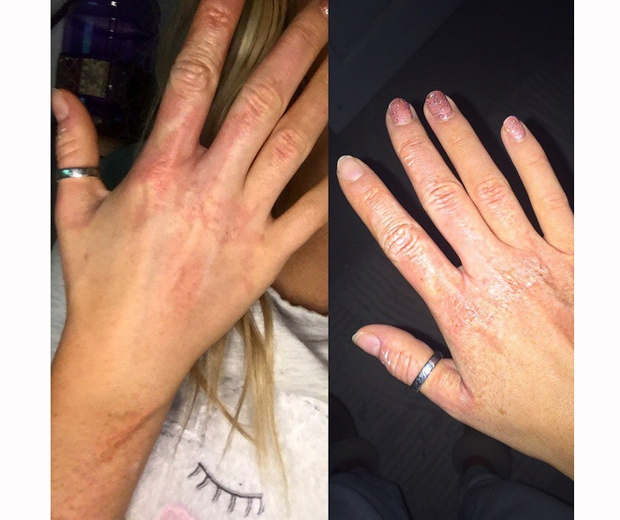perrie edwards hand blisters from fire