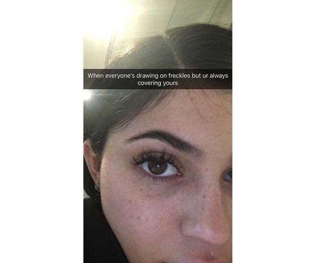 kylie-jenner-freckles-snapchat