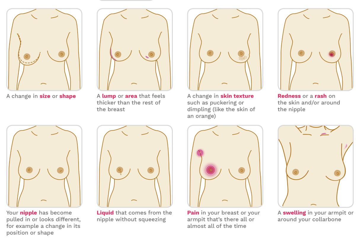 How to check your breasts
