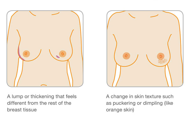 Signs Of Breast Cancer How To Check Your Breasts-5830