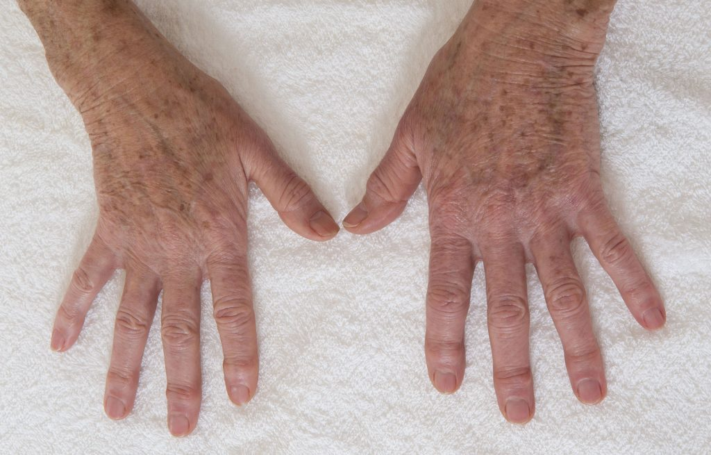 Skin pigmentation: How to get rid of liver spots