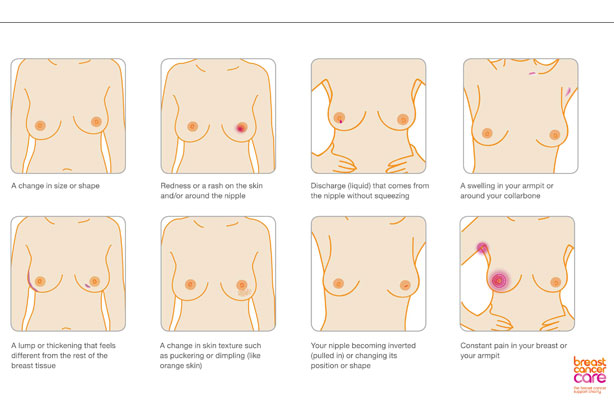 Signs Of Breast Cancer How To Check Your Breasts
