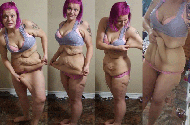 Woman Highlights The Reality Of Extreme Weight Loss As She