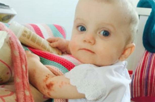 Mum praises Boots £3 99 'miracle cream' for curing