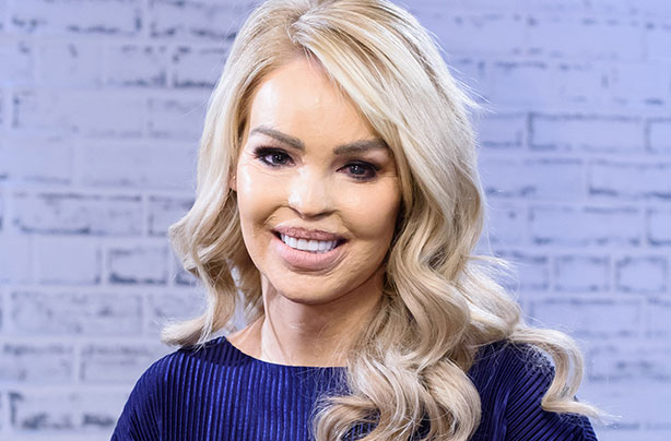 Katie Piper Has Been Praised By Fans For Uploading A Photo Of Her Post Baby Body On Instagram The Star Says Shes Happy And Healthy As She Adjusts To