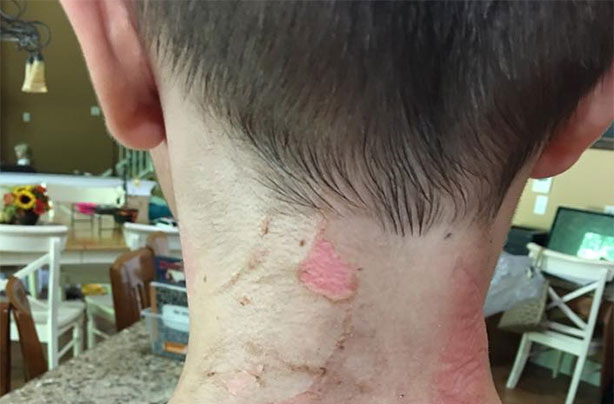 Mum shares horrific photo of son's second degree burns from the 'hot