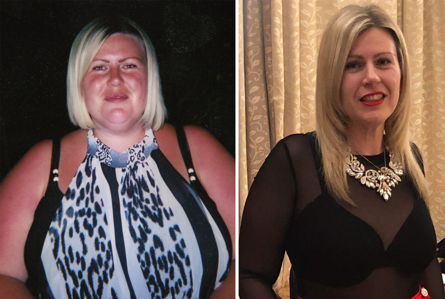 Mum with MS scoops Slimming World after incredible 11st weight loss