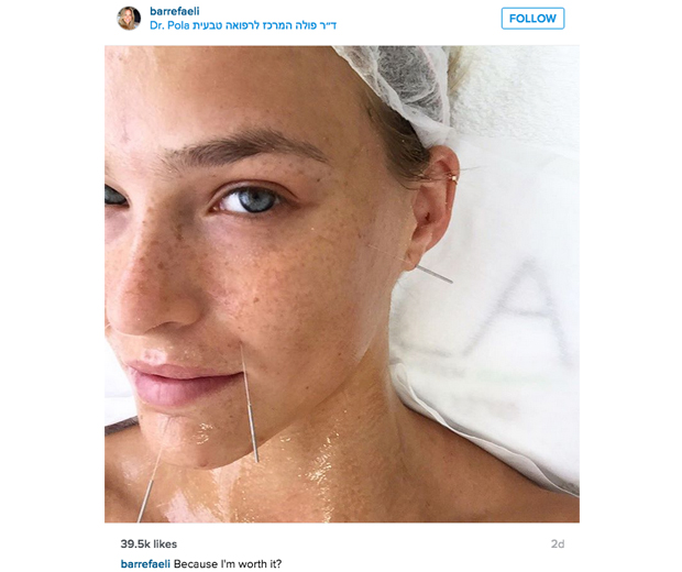 Bar Refaeli tries out cosmetic acupuncture